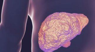 Ăn hạt hướng dương có thể bị ung thư gan? Nên ăn thế nào là đúng cách